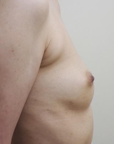 他院豊胸術後修正(ヒアルロン酸注入後)※の症例写真[ビフォー]