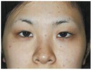 恵聖会クリニックの鼻の整形の症例写真[ビフォー]