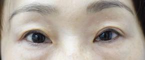 くぼんだ上瞼にヒアルロン酸注入の症例写真[アフター]