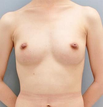 銀座みゆき通り美容外科の豊胸手術(胸の整形)の症例写真[アフター]