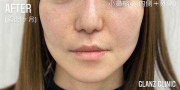 GLANZ CLINIC (グランツクリニック)の鼻の整形の症例写真[アフター]