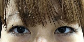 ルラ美容クリニックの目・二重の整形の症例写真[ビフォー]