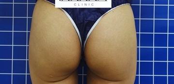 SELECT CLINIC(セレクトクリニック)の痩身、メディカルダイエットの症例写真[アフター]