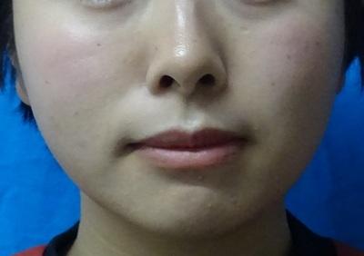 ボツリヌス・トキシン注入 小顔(エラ)の症例写真[アフター]