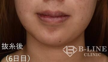 B-LINE CLINICの口もと、唇の整形の症例写真[アフター]
