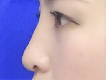 TCB 東京中央美容外科 京都院の鼻の整形の症例写真[アフター]