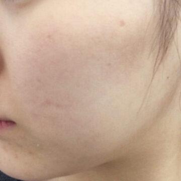 A CLINIC(エークリニック)のシミ治療(シミ取り)・肝斑・毛穴治療の症例写真[アフター]