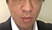 のアンチエイジング・美容点滴の症例写真[アフター]