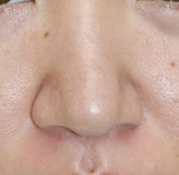 タウン形成外科クリニックの鼻の整形の症例写真[アフター]