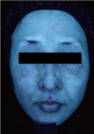 すなおクリニックのシミ治療(シミ取り)・肝斑・毛穴治療の症例写真[ビフォー]
