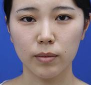 オザキクリニックLUXE新宿の口もと、唇の整形の症例写真[ビフォー]