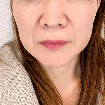 A CLINIC(エークリニック)の顔のしわ・たるみの整形の症例写真[ビフォー]