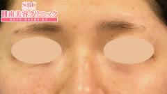 切らない目の下のたるみ取り+ナノリッチの症例写真[アフター]