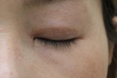 眼瞼下垂(目頭切開)の傷の症例写真[アフター]