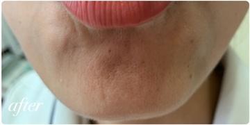 かなえデンタルクリニックの顔のしわ・たるみの整形(リフトアップ手術)の症例写真[アフター]