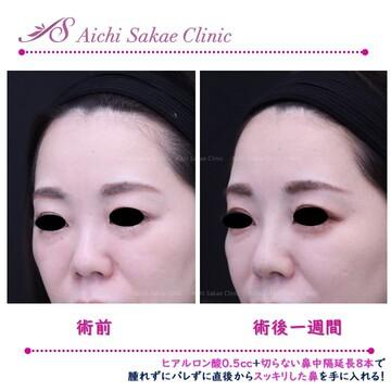 あいち栄クリニックの鼻の整形の症例写真