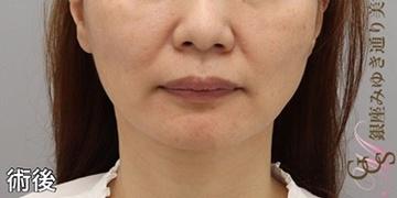 銀座みゆき通り美容外科大阪院の顔のしわ・たるみの整形(リフトアップ手術)の症例写真[アフター]
