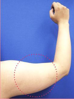■メソセラピー脂肪溶解注射の症例写真[ビフォー]