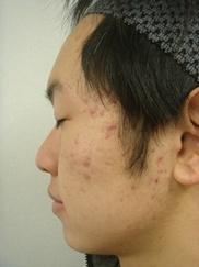 ゆきおかクリニックのニキビ治療・ニキビ跡の治療の症例写真[アフター]