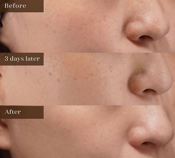 アーククリニックのシミ取り・肝斑・毛穴治療の症例写真
