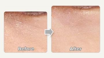 メディエスクリニックの顔のしわ・たるみの整形(リフトアップ手術)の症例写真