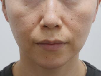 静岡美容外科橋本クリニックの輪郭・顎の整形の症例写真[アフター]