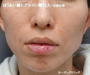 ルーチェ東京美容クリニック 池袋院の顔のしわ・たるみの整形(リフトアップ手術)の症例写真[アフター]