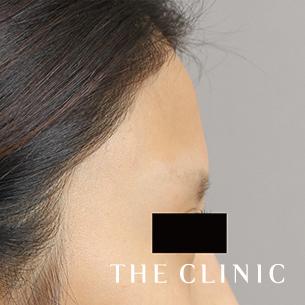 THE CLINIC(ザ・クリニック)の顔の整形(輪郭・顎の整形)の症例写真[ビフォー]