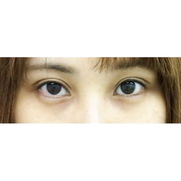 水の森美容外科の目・二重の整形の症例写真[アフター]