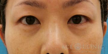 エースクリニックグループの目元整形・クマ治療の症例写真[ビフォー]