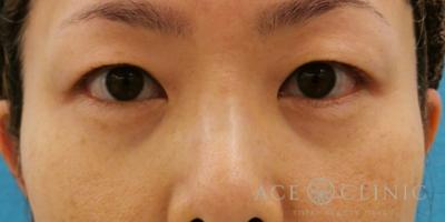 目の下のクマ・たるみ取り 脱脂CRF法の症例写真[ビフォー]