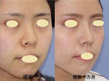 湘南美容クリニック 名古屋 栄院の鼻の整形の症例写真