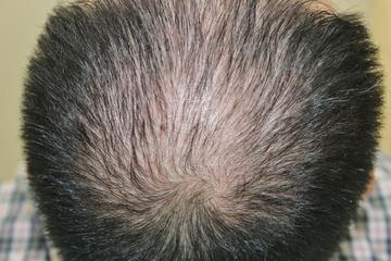 タウン形成外科クリニックの薄毛治療・AGA・発毛の症例写真[ビフォー]