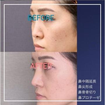 東京美容外科 沖縄院の鼻の整形の症例写真