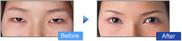 コムロクリニック(旧コムロ美容外科)の目・二重の整形の症例写真