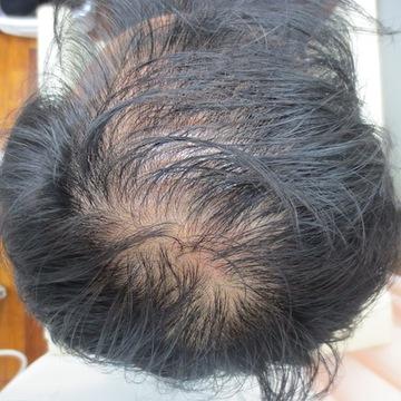 はなふさ美容皮膚科の薄毛治療・AGA・発毛の症例写真[ビフォー]