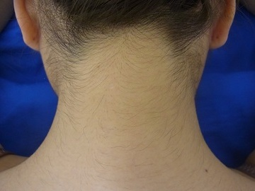 の医療レーザー脱毛の症例写真[アフター]