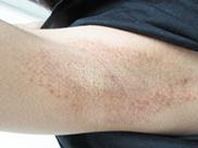ガーデンクリニックのわきが手術・多汗症治療の症例写真[アフター]