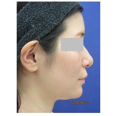 顎プロテーゼの入れ替えで理想の輪郭へ[ビフォー]