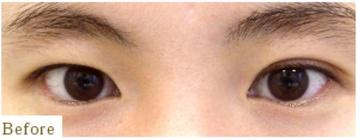 表参道スキンクリニックの目・二重の整形の症例写真[ビフォー]