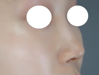 TCB式鼻先尖鋭術 プレミアムの症例写真[アフター]