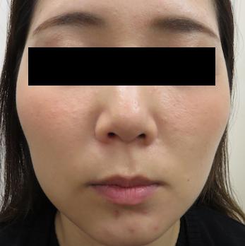 はなふさ皮膚科の顔の整形(輪郭・顎の整形)の症例写真[アフター]