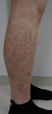静岡美容外科橋本クリニックのタトゥー除去(刺青・入れ墨を消す治療)の症例写真[アフター]