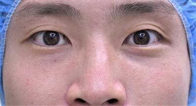 重瞼法 埋没法の症例写真[ビフォー]