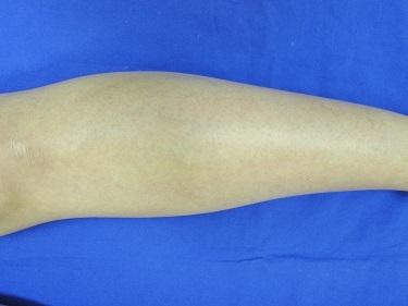 足全体の医療レーザー脱毛の症例写真[アフター]