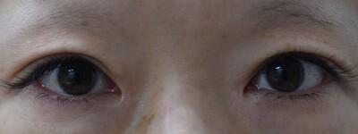 目元の複合施術 二重切開法(腱膜短縮)・上瞼脱脂・目頭切開の症例写真[アフター]