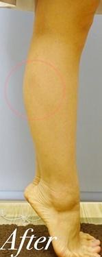 脚やせの症例写真[アフター]