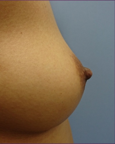 3Dプレミアム注入法によるコンデンスリッチ脂肪豊胸の症例写真[アフター]