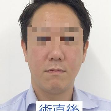 東郷美容形成外科福岡の顔の整形(輪郭・顎の整形)の症例写真[アフター]