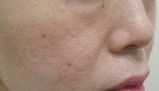 フォトシルク(120shot) 5回 毛穴・ニキビ・肌のきめの症例写真[アフター]